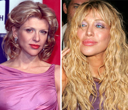 Courtney Love before and after