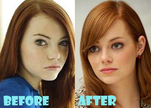 Emma Stone Plastic Surgery before and after