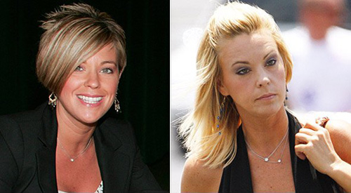 Kate Gosselin plastic surgery before and after