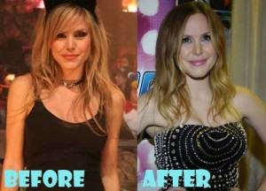 Leah Miller Plastic Surgery before and after