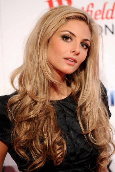 Tamsin Egerton Plastic Surgery before and after