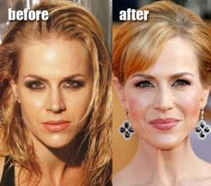 Julie Benz Plastic Surgery before and after
