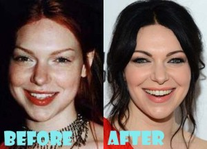 Laura Prepon Plastic Surgery Before After