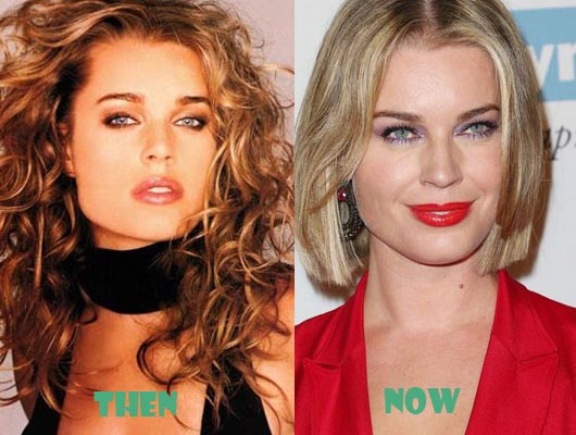 Rebecca Romijn Plastic Surgery Before After