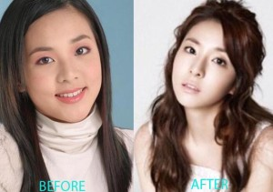 Sandara Park Plastic Surgery Before After