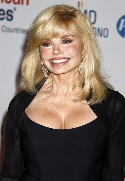 Loni Anderson Plastic Surgery Before After