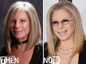 Barbra Streisand Plastic Surgery Before After