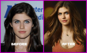 Alexandra Daddario Plastic Surgery Before After