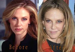 Ally Walker Plastic Surgery Before After