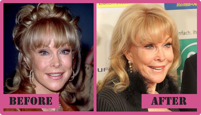Barbara Eden Plastic Surgery Before After