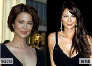 Catherine Bell Plastic Surgery Before After