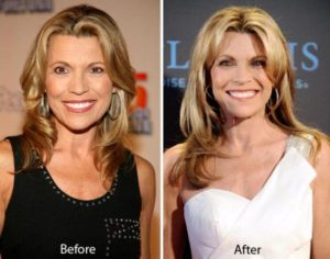 Cheryl Ladd Plastic Surgery Before After