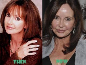 Jackie Zeman Plastic Surgery Before After