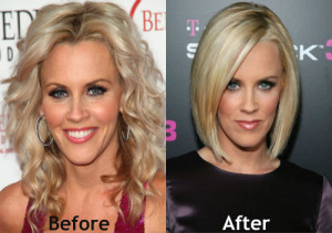 Jenny Mccarthy Plastic Surgery Before After