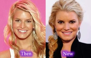 Jessica Simpson Plastic Surgery Before After