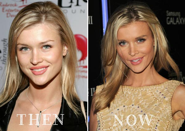 Joanna Krupa Plastic Surgery Before After