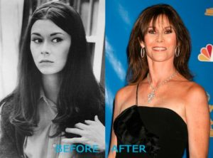 Kate Jackson Plastic Surgery Before After
