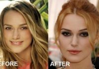 Keira Knightley Plastic Surgery Before After