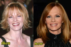 Marg Helgenberger Plastic Surgery Before After