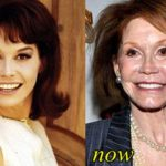 Mary Tyler Moore Plastic Surgery : Breast Butt Nose Chin Lips