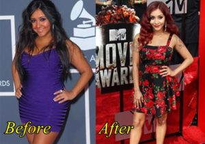 Nicole Polizzi Plastic Surgery Before After