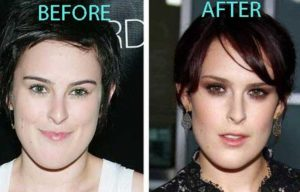 Rumer Willis Plastic Surgery Before After