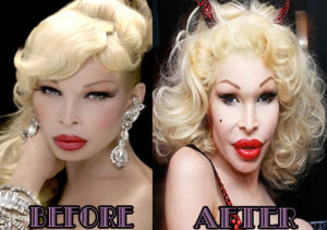 Amanda Lepore Plastic Surgery Before After