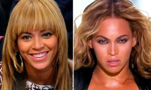 Beyonce Plastic Surgery Before and After