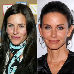 Courteney Cox Plastic Surgery Before After