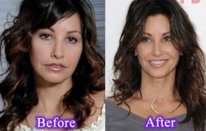 Gina Gershon Plastic Surgery Before After