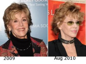 Jane Fonda Plastic Surgery Before After