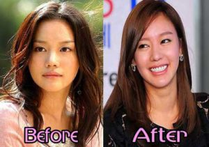 Kim Ah Joong Plastic Surgery Before and After