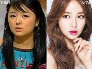 Yoon Eun-hye Plastic Surgery Before and After