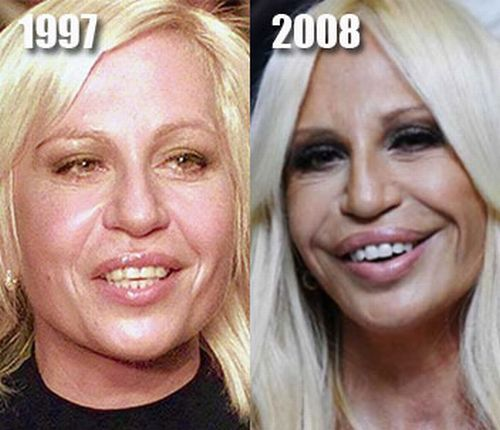 Donatella Versace Plastic Surgery Before After
