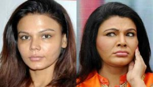 Rakhi Sawant Plastic Surgery Before After