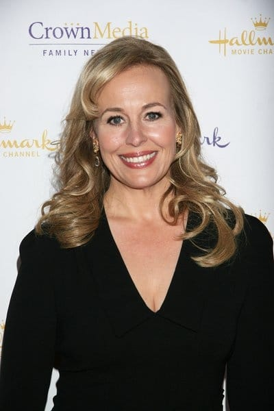 Genie Francis Plastic Surgery Before After