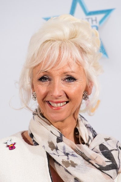 Debbie McGee Plastic Surgery Before After