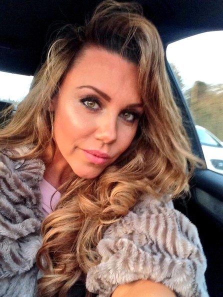 Michelle Heaton Plastic Surgery Before After
